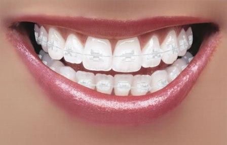 ceramic braces in Dubai