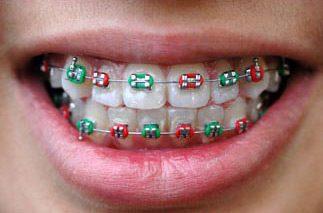 colored metal braces in Dubai