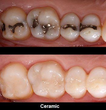 dental filling dubai UAE